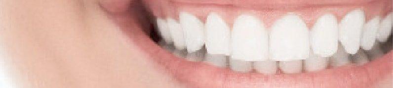 Caries et perte prématurée des dents de lait